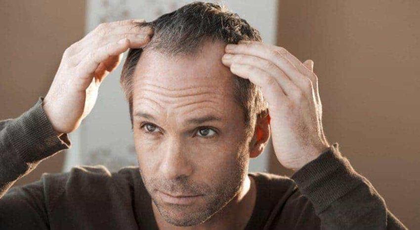 brotzu lotion for hair loss